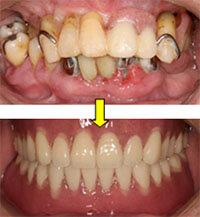 天然歯と見分けがつかないほど自然