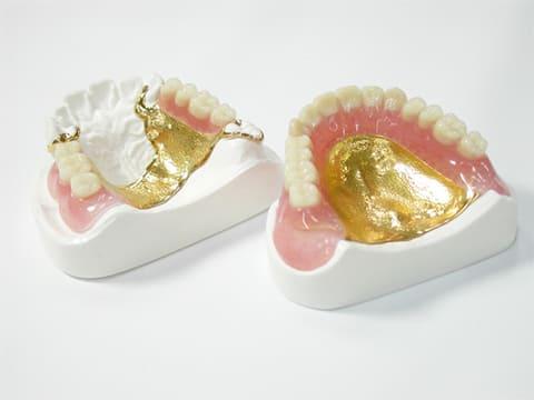 金属床の入れ歯