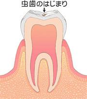 虫歯のはじまり