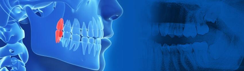 口腔外科専門医による親知らず治療