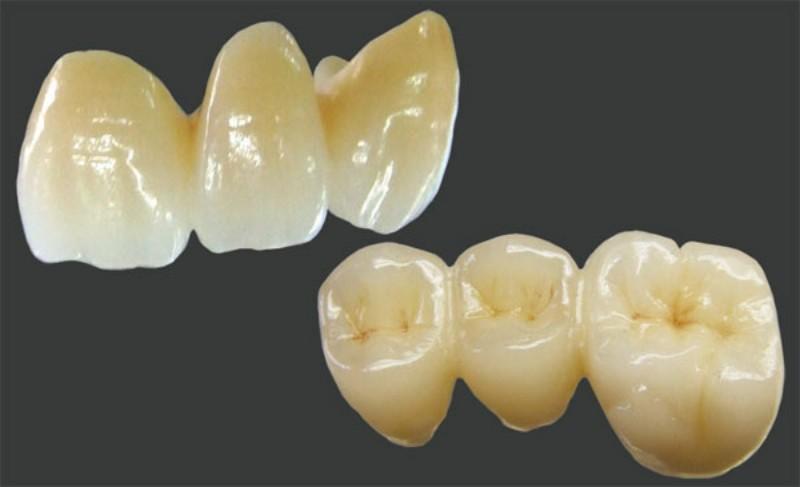 zirukoniaA-0-800x487