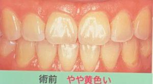 F2C0263C-3A21-4D82-B8DD-E2E5FF735FDC